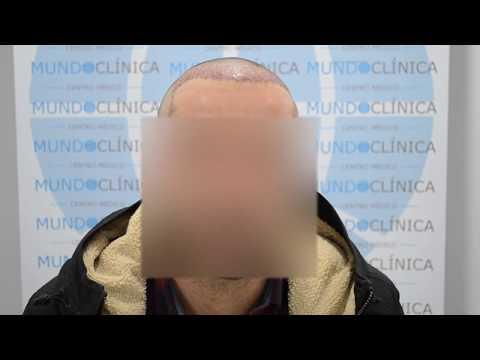 Implante capilar en Málaga / Mundo Clínica