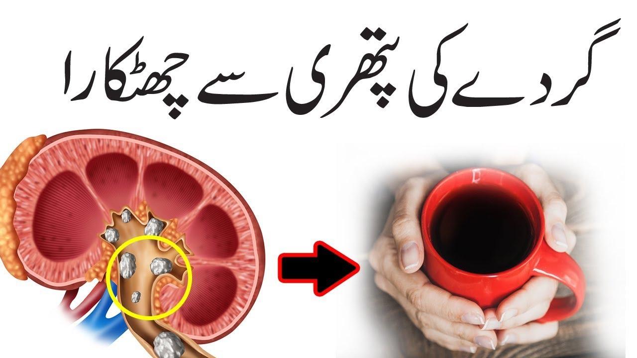 How to remove kidney stones