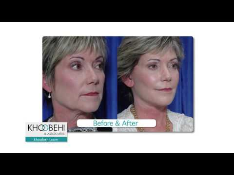 "Dr. Khoobehi explains his ""LA Facelift"""