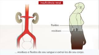 Direita na renal perna insuficiência dor