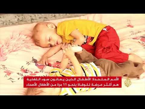 يونيسيف: 2.2 مليون طفل يمني يعانون سوء التغذية  - 13:22-2018 / 1 / 11