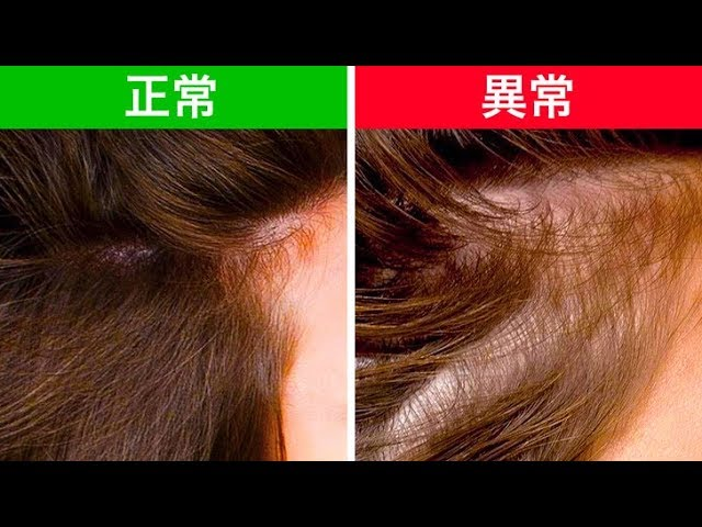 髪からわかる健康状態