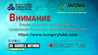 Вазэктомия - Презентация Доктора Габриэле Антонини