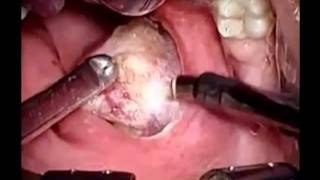 Tonsil Stones Sore Testicles