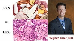 How to Reduce Inflammation | Inflammatory Foods | Stephan Esser, MD