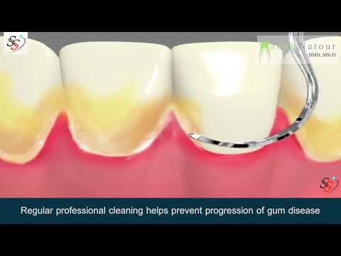 Dental Cleaning Procedure - Dr. Mazen Natour DMD - Manhattan New York