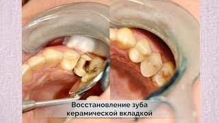 Восстановление разрушенного зуба керамической вкладкой Noritake