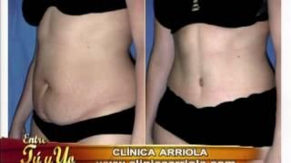 Repeat youtube video Abdominoplastía: consigue un abdomen estético