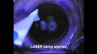 LASIK Laser - Reya Laser Vision Centre, Anna Nagar, Chennai