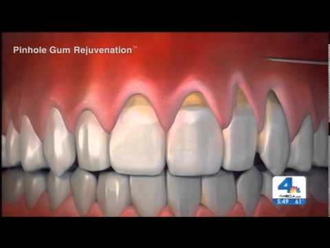 Can receding gums be reversed naturally