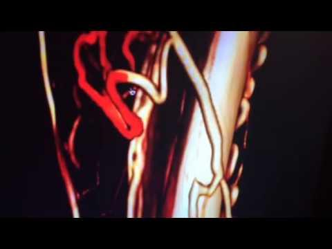 Varice (vene varicoase)