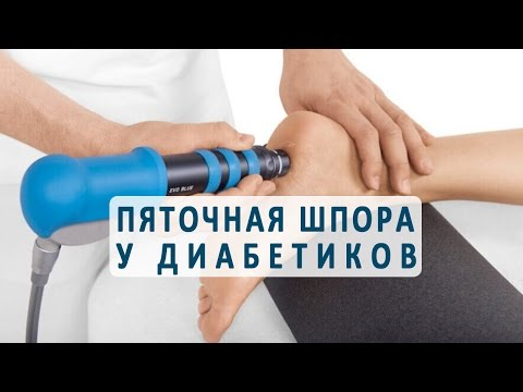 Отеки ног при сахарном диабете: причины, симптомы, лечение