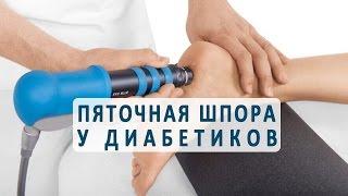 видео Какие причины вызывают боль в пятке при ходьбе?