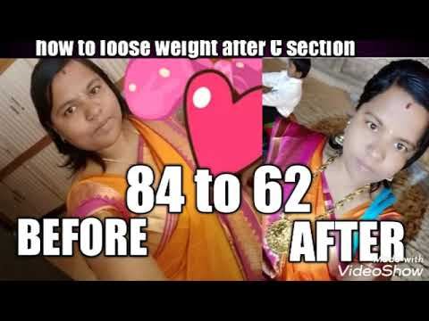 how to lo lose weight fast after c section # weight loss ...