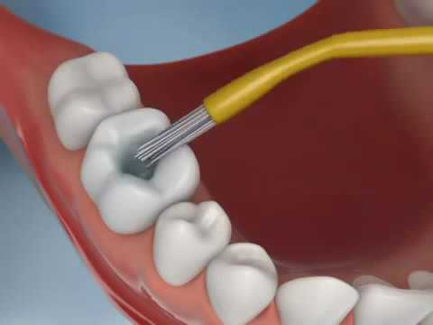 Filling Dental Animation