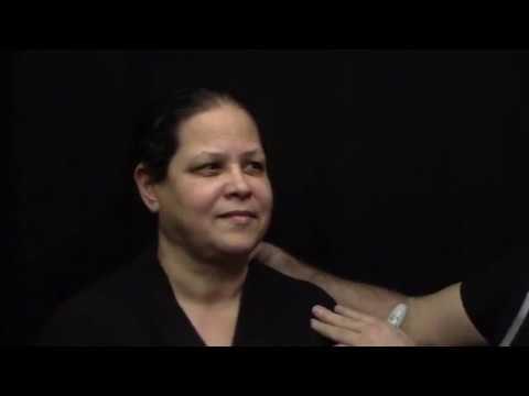 AccuTite Facial Contouring Procedure by Dr Spero Theodorou