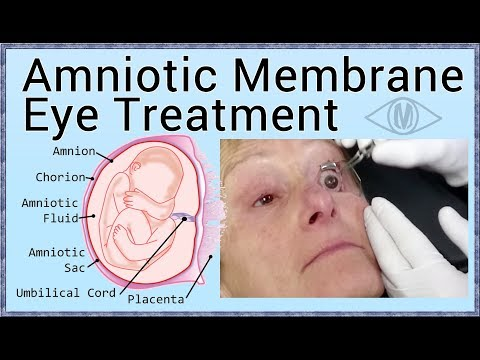 Amniotic Membrane Eye Treatment (for Damaged Corneas)