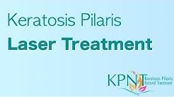 Keratosis Pilaris Laser Treatment Video