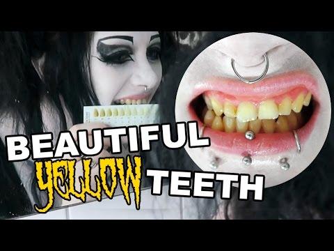 My Yellow Teeth! Whitening Them?   Black Friday