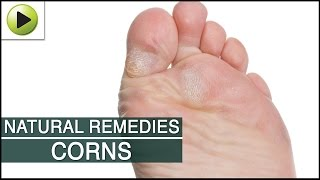 Skin Care - Corns - Natural Ayurvedic Home Remedies