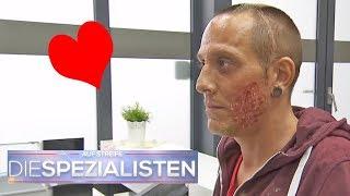 Herzförmige Verbrennung im Gesicht: wie ist das passiert? | Die Spezialisten | SAT.1 TV