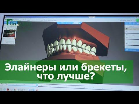 Ортодонтические трейнеры для зубов обзор всех моделей, фото