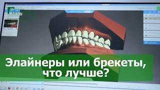 видео Запечатывание фиссур зубов взрослым: фото, описание, что это такое