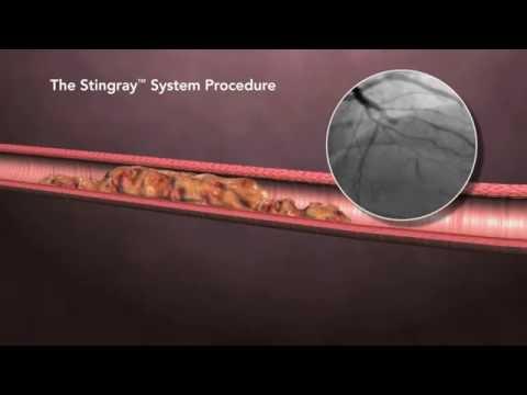 Cardiac Innovations & Structural Heart Center - CrossBoss Stingray Procedural Animation