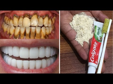 Magical Teeth whitening Remedy, Get Whiten Teeth at Home in 7 Minutes