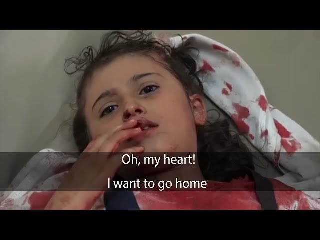This is what the girl Fatima said after being shot by the militia!