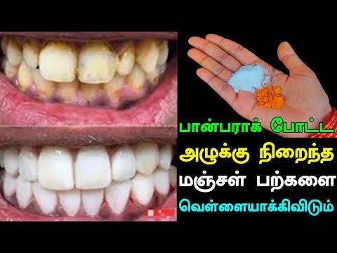 அழுக்கு நிறைந்த மஞ்சள் பற்களை வெள்ளையாக்கி விடும்   Teeth Whitening