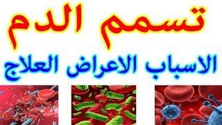 تسمم الدم  ... موضوع شامل
