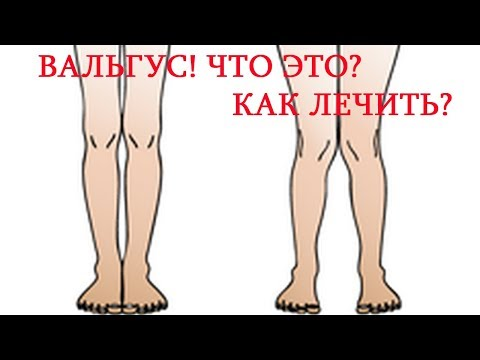 Вальгусная постановка ног / Как лечить