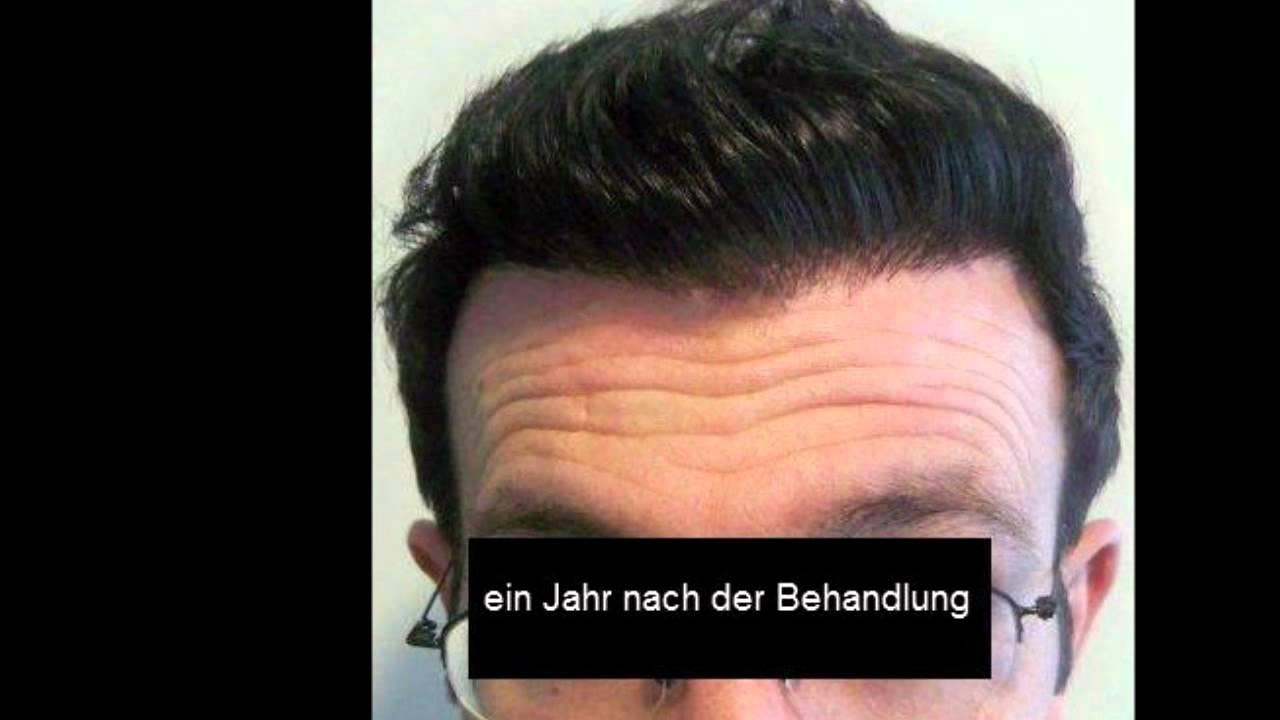 Haare einpflanzen lassen istanbul