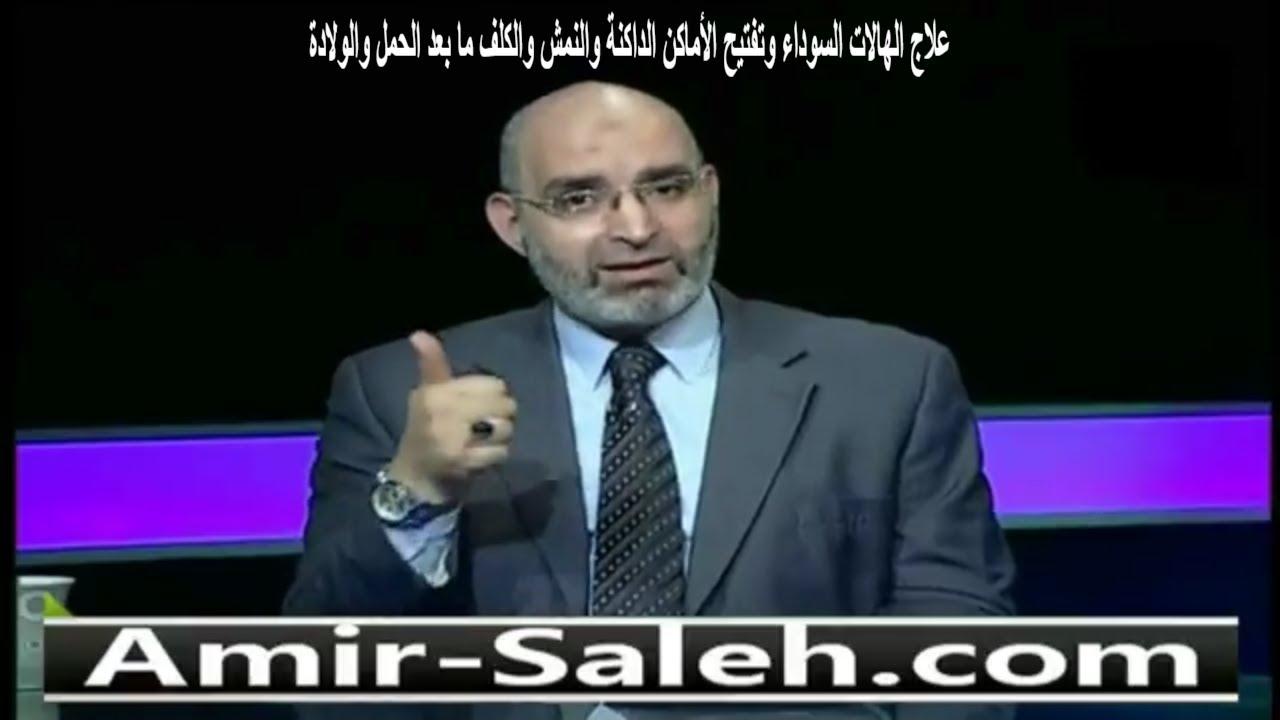 وصفة لإزالة الهالات السوداء والنمش والكلف ما بعد الولادة وتفتيح الأماكن الداكنة | الدكتور أمير صالح