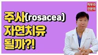 주사(rosacea) - 주사 자연치유 가능할까?[명동…