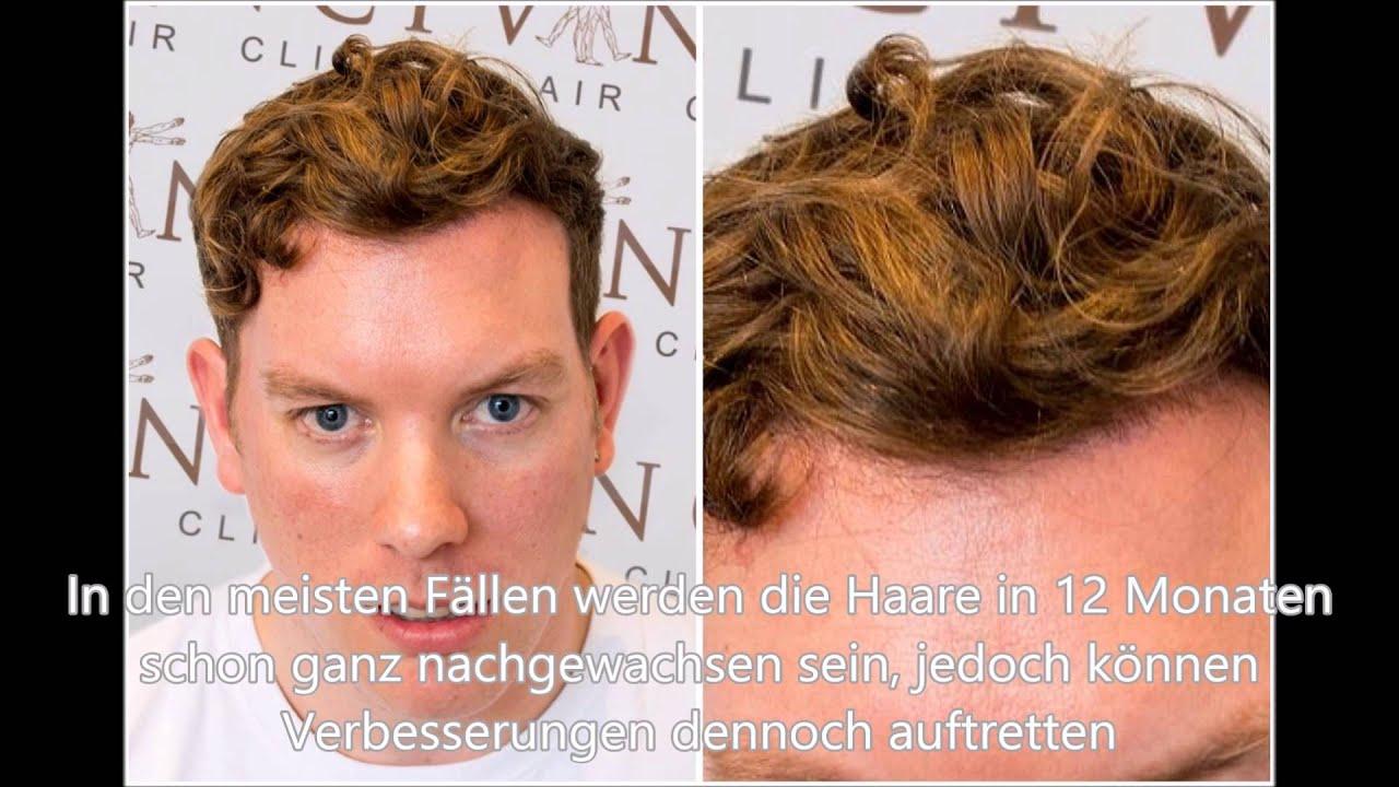 Haartransplantation Wann Wachsen Die Haare