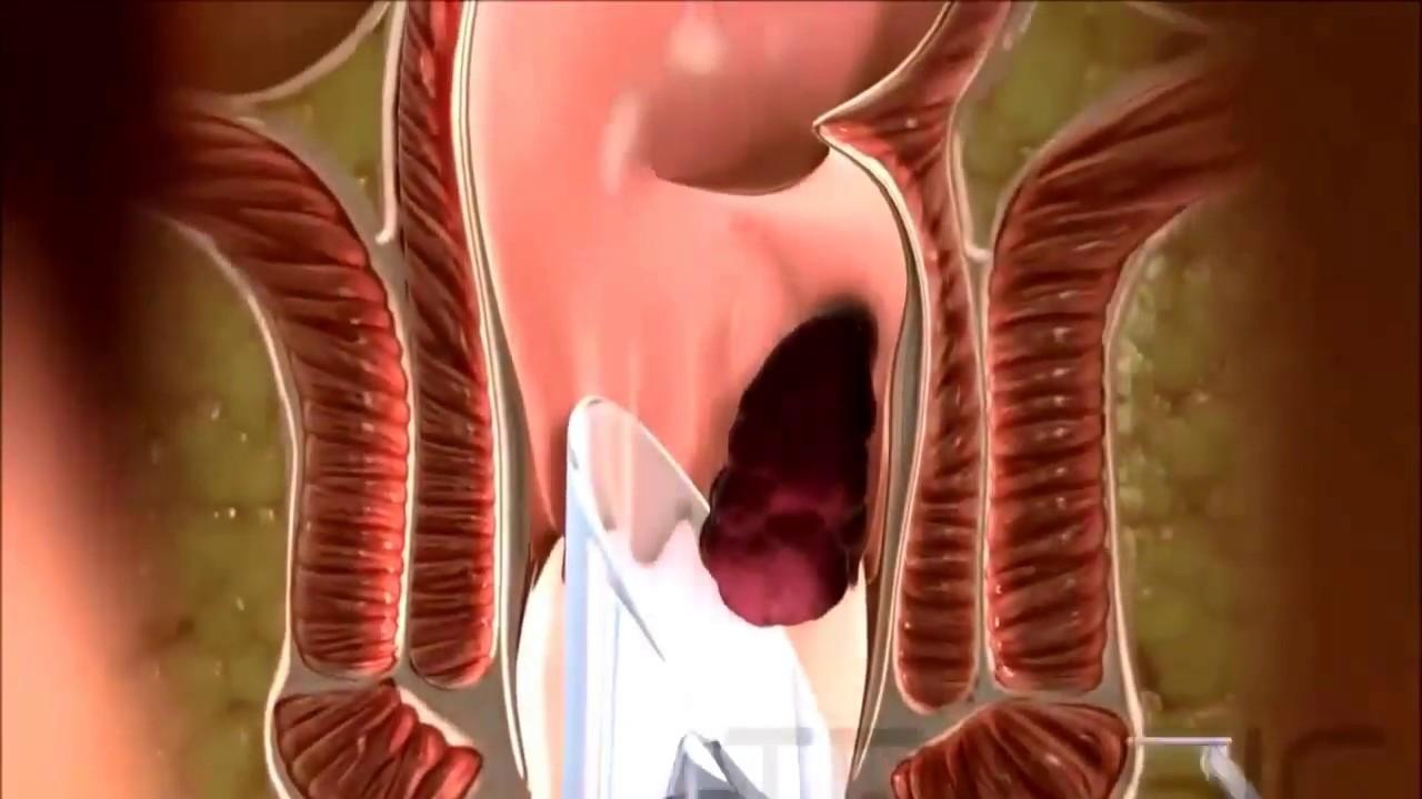 Hemoroid (Basur) Ağrısını Gidermenin 5 Yolu