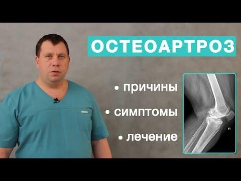 Остеоартроз. Причины, симптомы и лечение остеоартроза. Отличие артрита от остеоартроза
