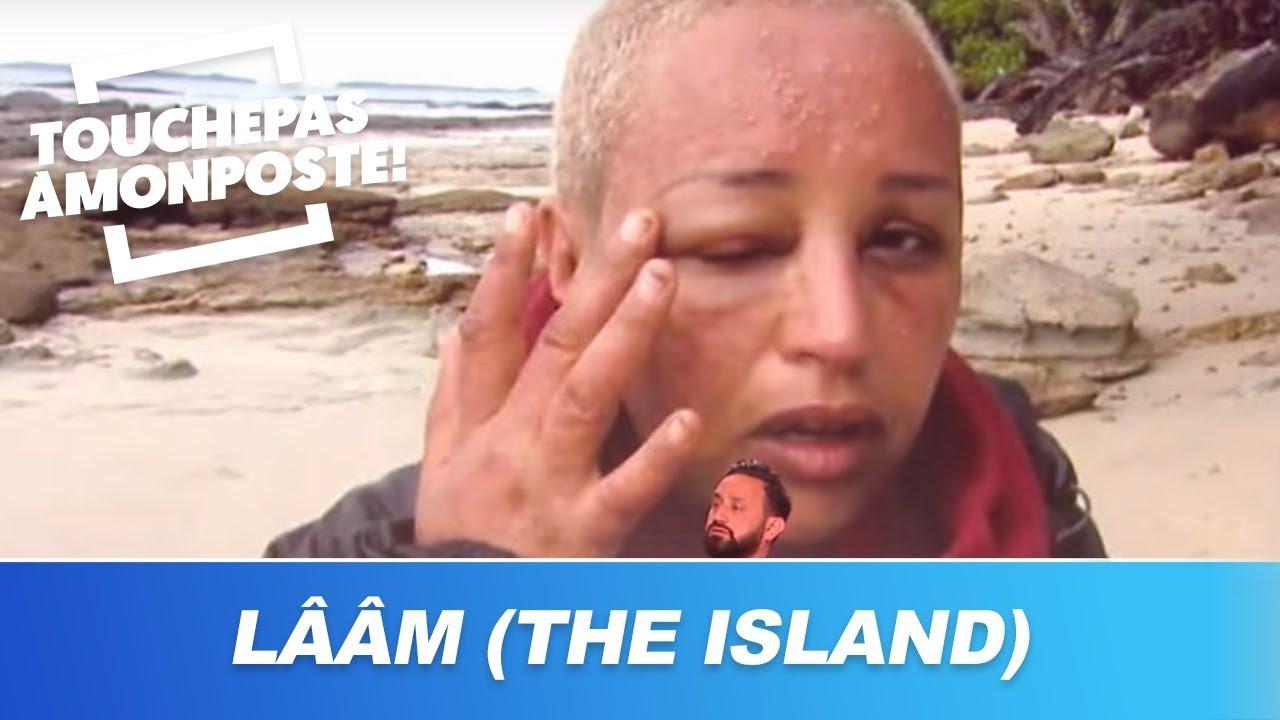 Lââm (The Island) : Défigurée par les piqûres d'insectes