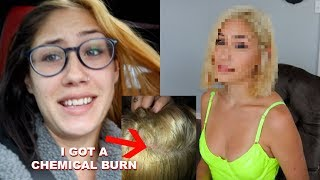 I bleached my hair TWICE and got a chemical burn *SHOCKING TRANSFORMATION*
