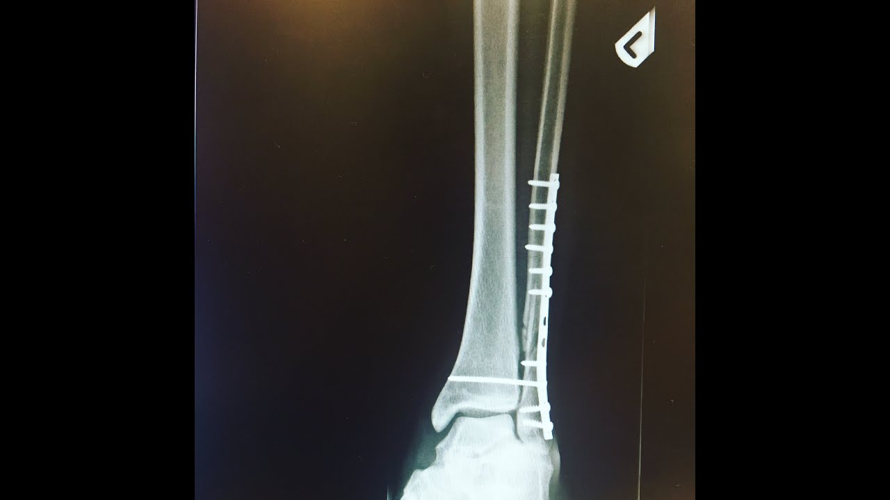 Recovery from fibula surgery