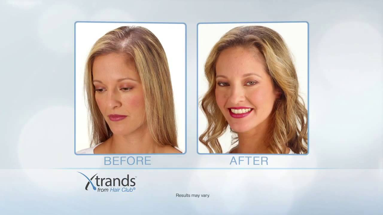 Hair Club Commercial Xtrands Free Loss Information Kit 4 Deluxe Products 120