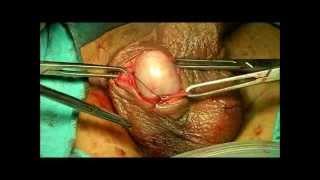 Repeat youtube video HYDROCELE- BY DR.SACHIN GUPTA (M.S) AYU-09419960202