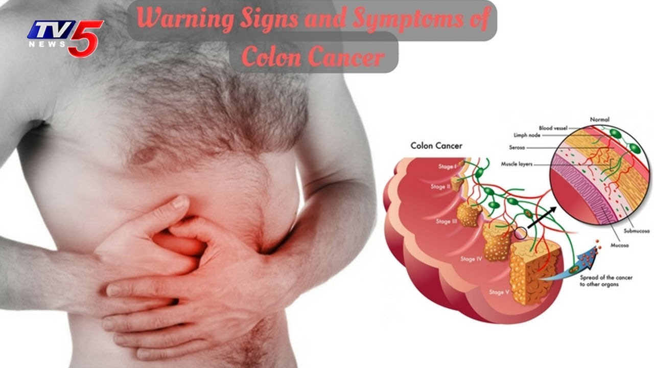 Causes Symptoms And Treatment For Colorectal Cancer Health File Tv5 News Youtube