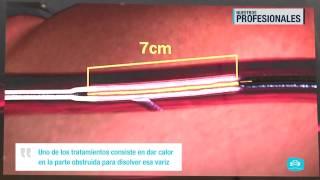 Procedimientos vascular? ¿Qué realiza un cirujano