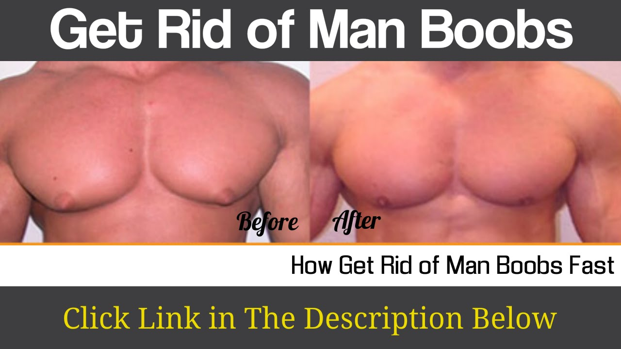 The truth about man boobs