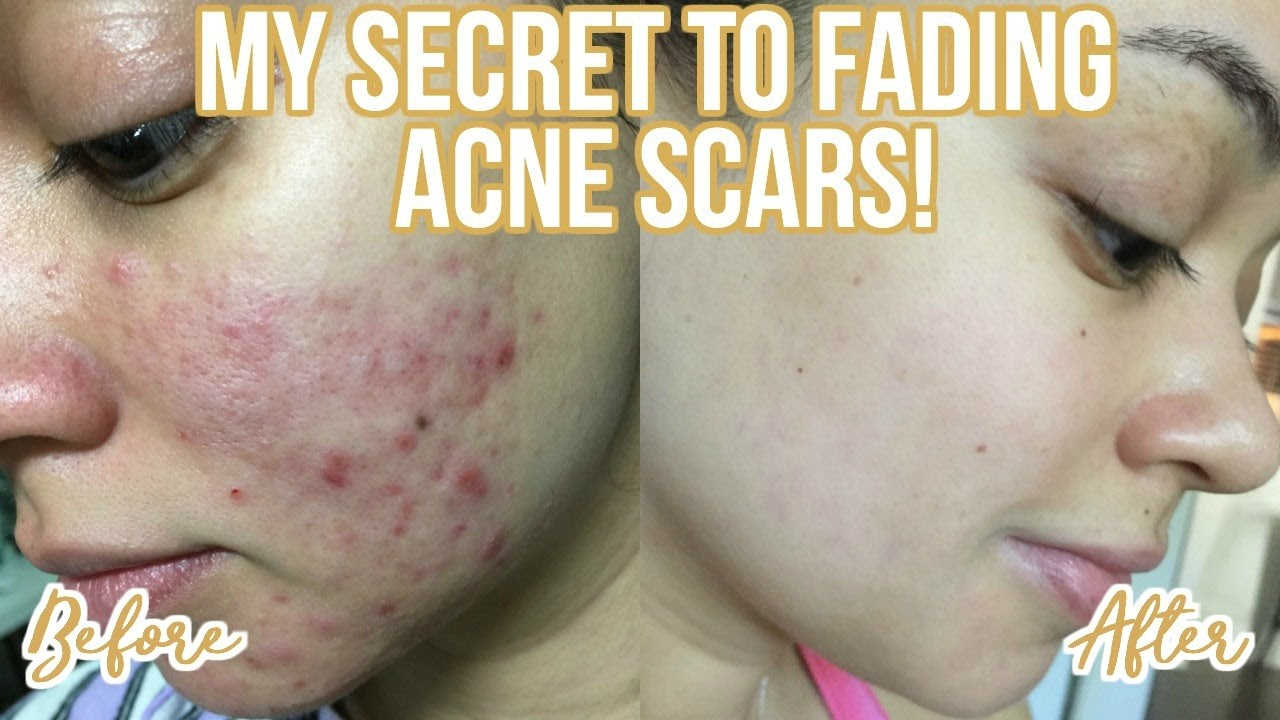How To Get Rid Of Acne Scars My Skincare Routine Youtube