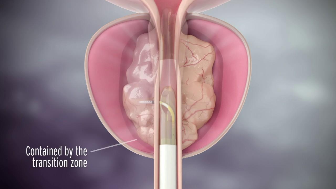 Denák és prostatitis kezelés
