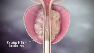 Rezum Treatment for Enlarged Prostate with Dr. Richard Levin